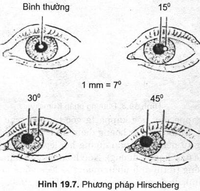 Khám cân bằng hai mắt và đo góc lác