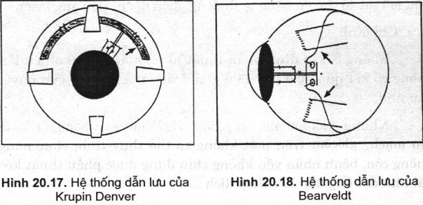 Hệ thống dẫn lưu điều trị glôcôm