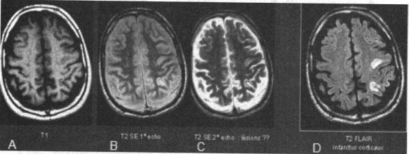Các ảnh MRI