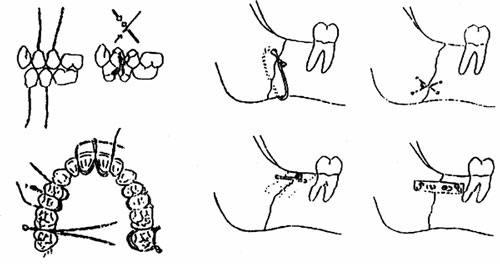 Các phương pháp cố định gãy xương hàm