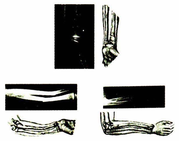 Gãy cành tươi 2 xương cẳng tay ỏ trẻ em