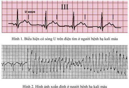 Biểu hiện có sóng U trên điện tim ở người bệnh hạ kali máu