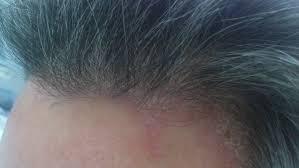 Nấm tóc do nấm Trichopyton