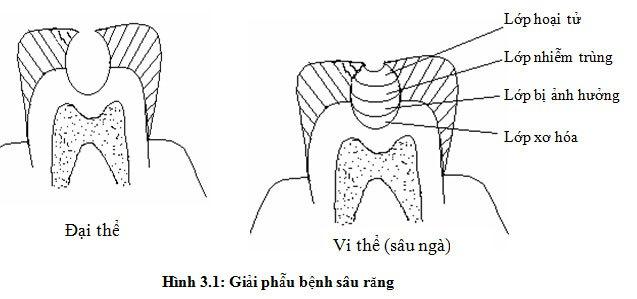 Hình ảnh răng sâu