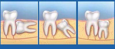 Răng khôn mọc lệch ngầm dưới xương
