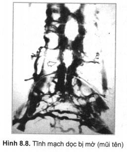 Tĩnh mạch dọc bị mờ